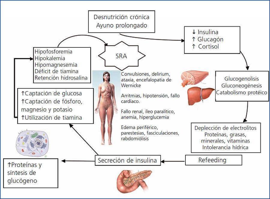 dieta de diabetes ketonlichamen