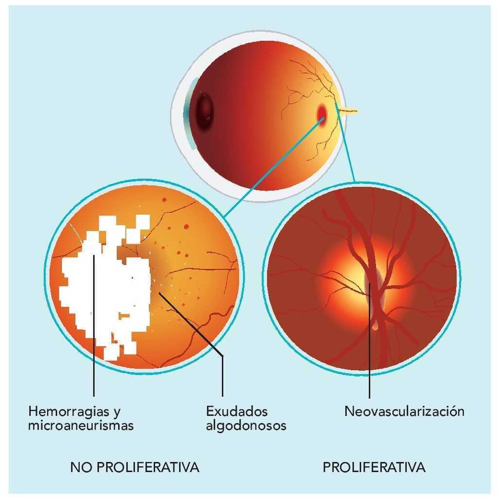 imágenes retinianas y diabetes