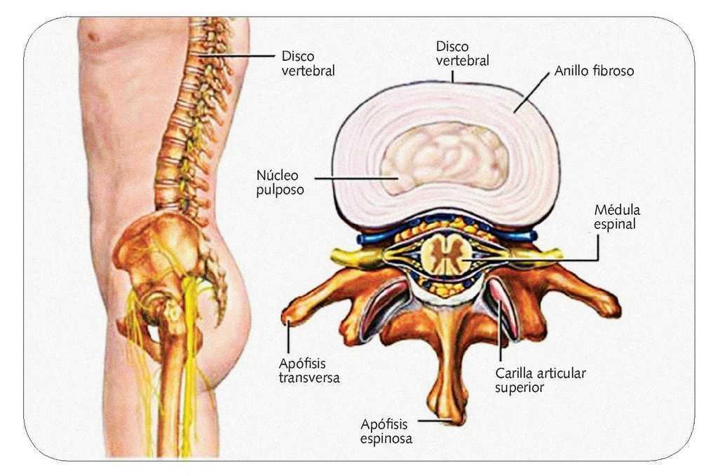 Hernia de disco. Opciones terapéuticas | Farmacia Profesional