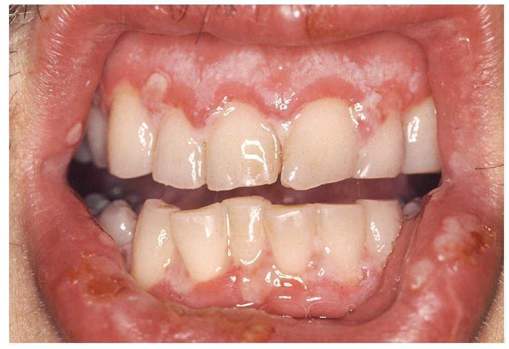 Sintomas del papiloma en la boca, Hpv en boca sintomas
