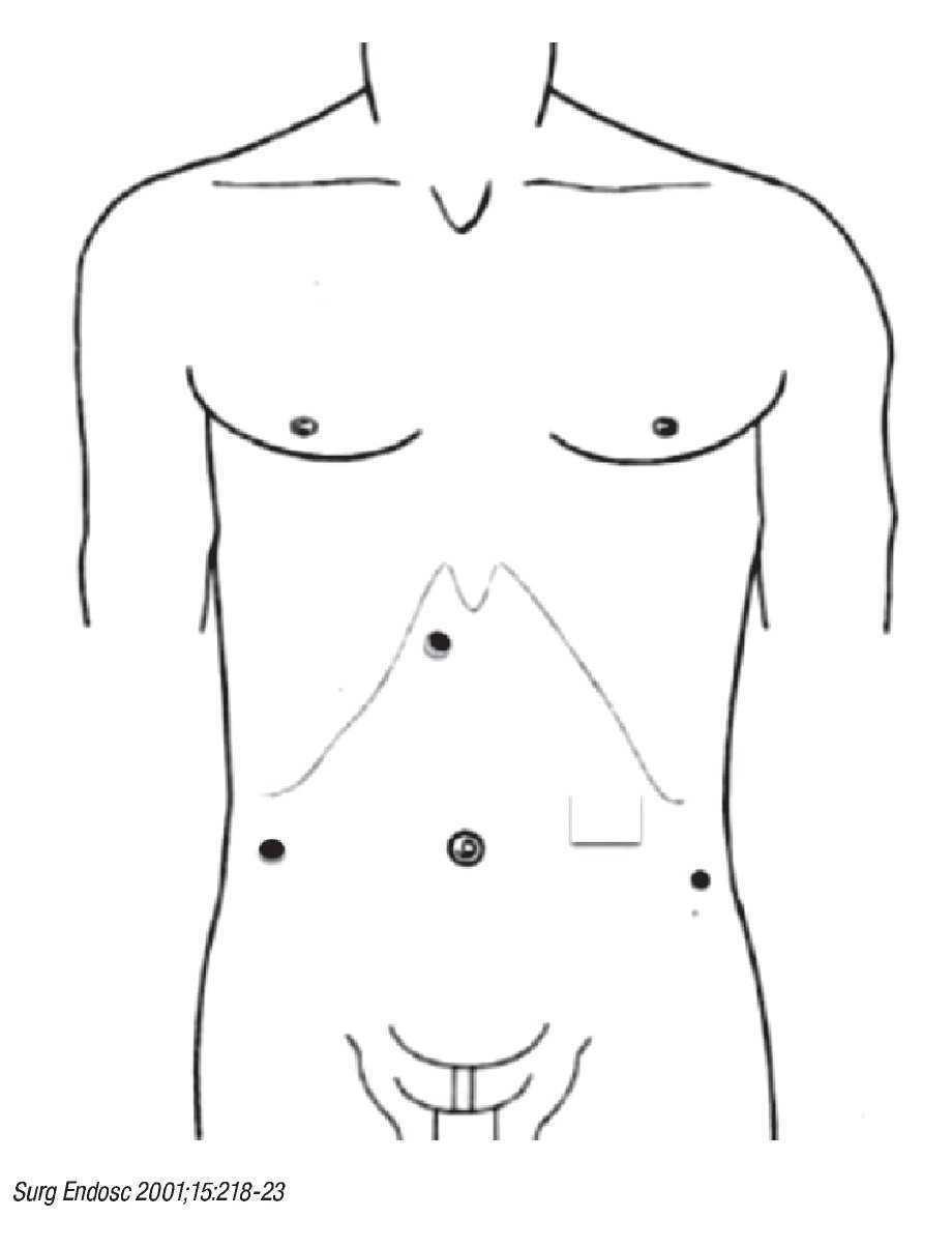 Colecistectomía con exploración de vías biliares laparoscópica en un ...