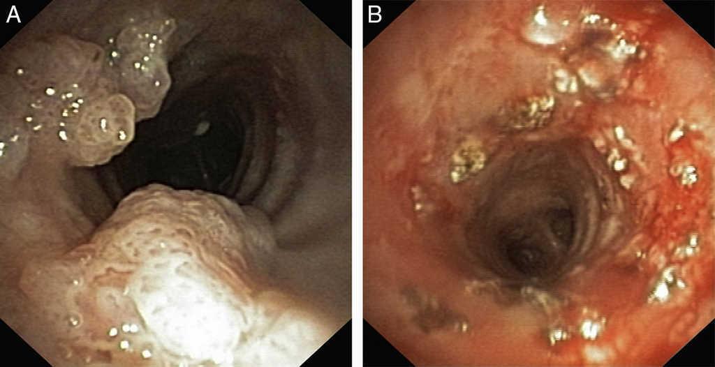 papillomatosis trachea)