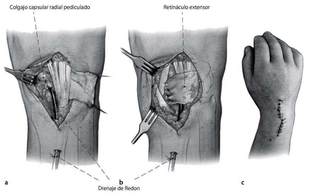 a scaphoid nyaki artrózisa