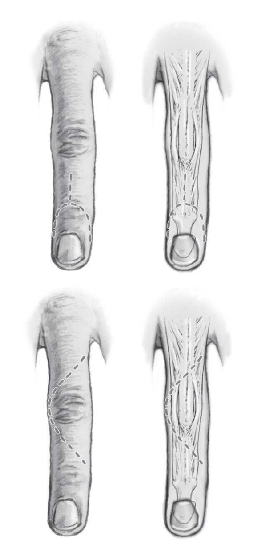 ce să faci dacă umflarea articulației
