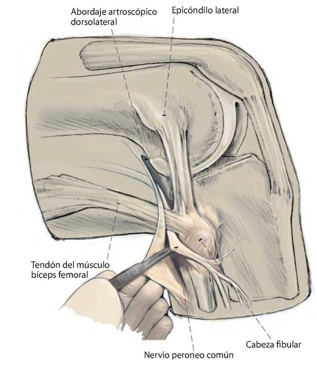 gyulladásgátló a vállízület artrózisában deformáló artrózis kezelésére szolgáló gyógyszer