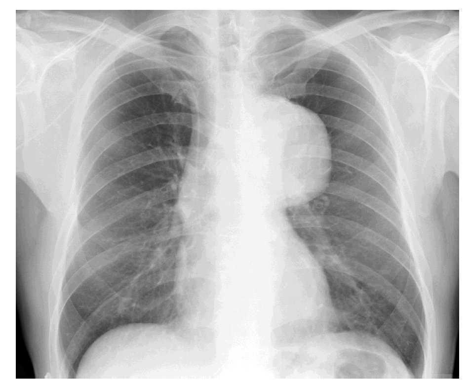 dolor en la ingle aneurisma abdominal que nervio
