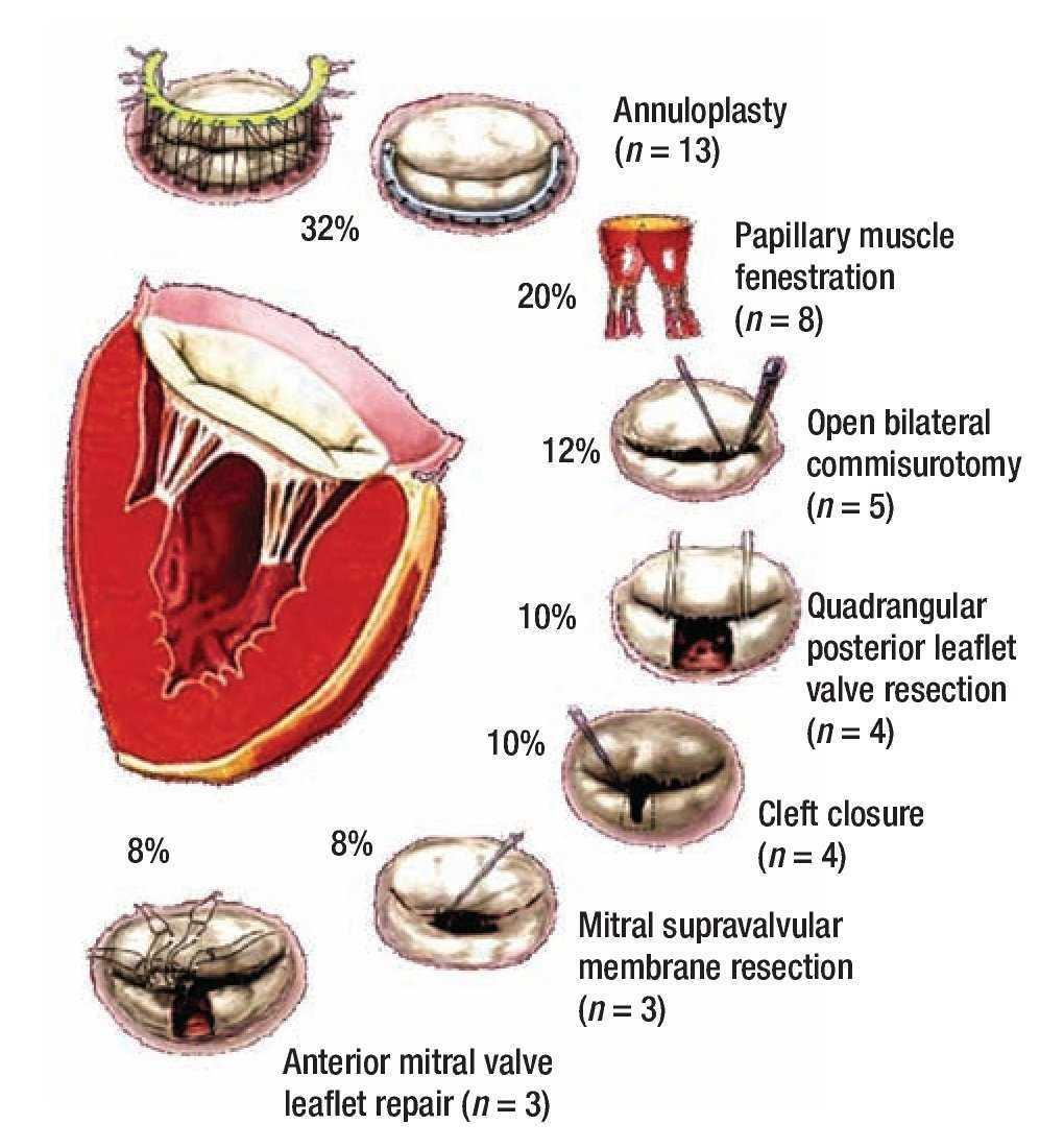 surgical repair of congenital mitral valve malformations. Black Bedroom Furniture Sets. Home Design Ideas