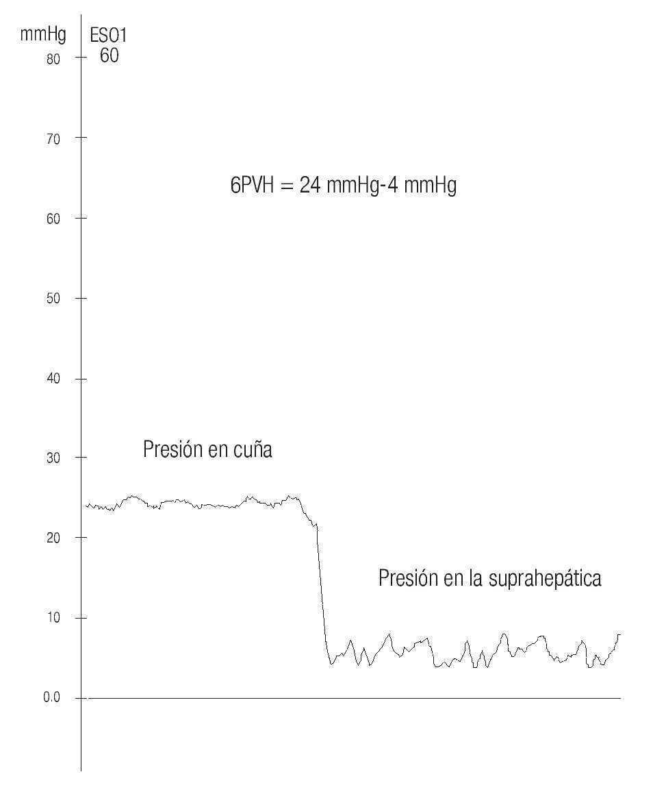 Sindrome de hipertension portal causas de presion