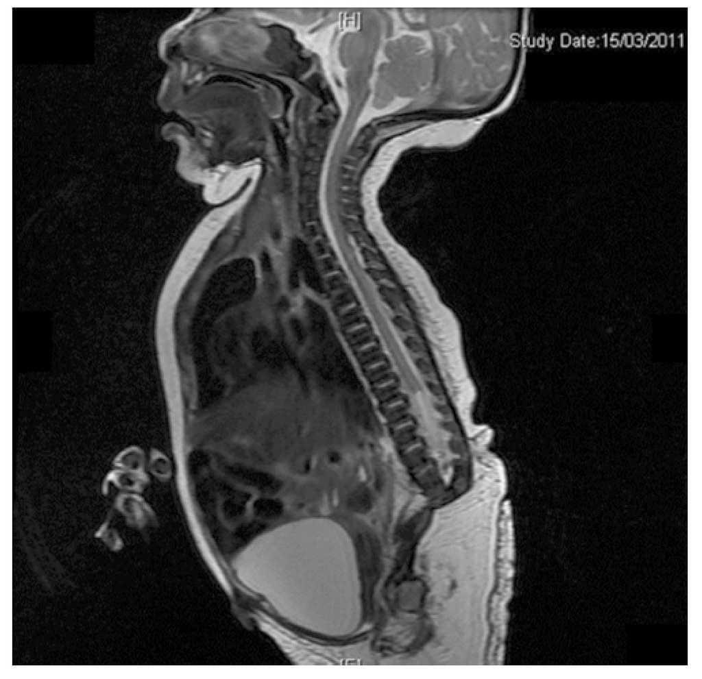 Caudal regression syndrome: A case report | Medicina Universitaria