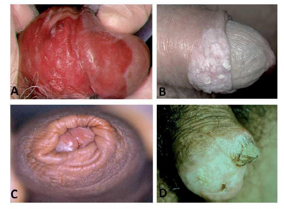 Cáncer de pene. Revisión de las características clínico-patológicas |  Gaceta Mexicana de Oncología