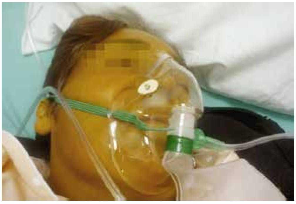 El periodo de la agonía | Gaceta Mexicana de Oncología