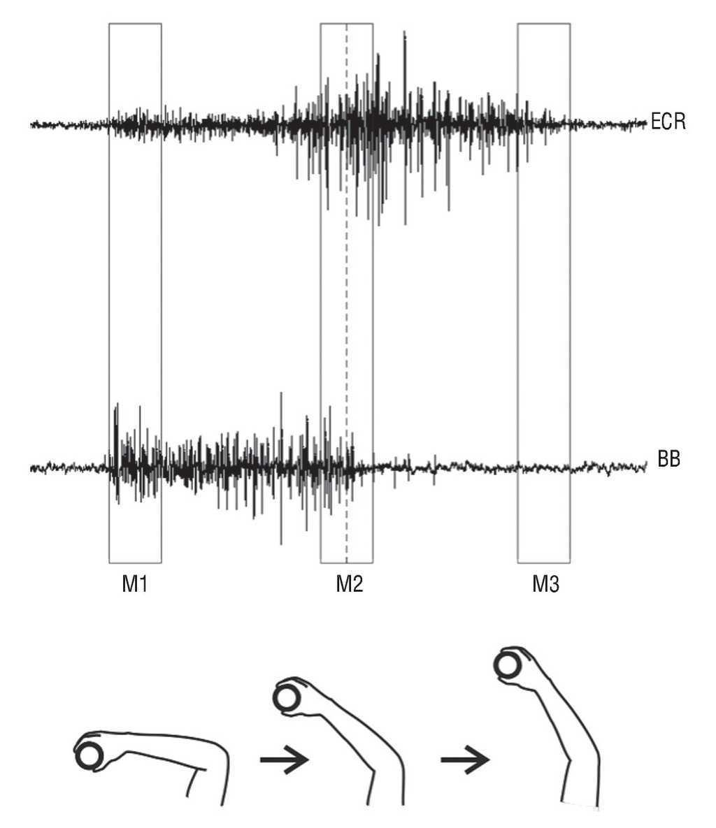 Temporal Changes In The Myoelectric Activity Between Dominant Figure 2 Block Diagram Of Proposed System For Emg Signal Fig This Schematic View Illustrates How Surface Electromyographic Each Time M1 M2 And M3 Was Identified During Task