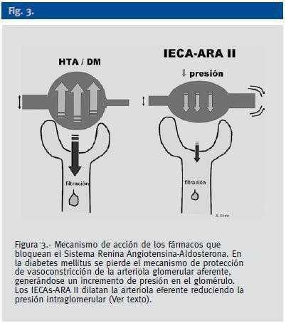 Células intraglomerulares de hipertensión