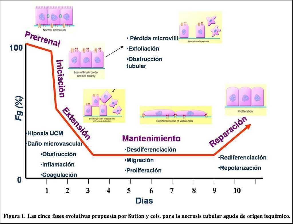 alteraciones morfologicas renales por diabetes