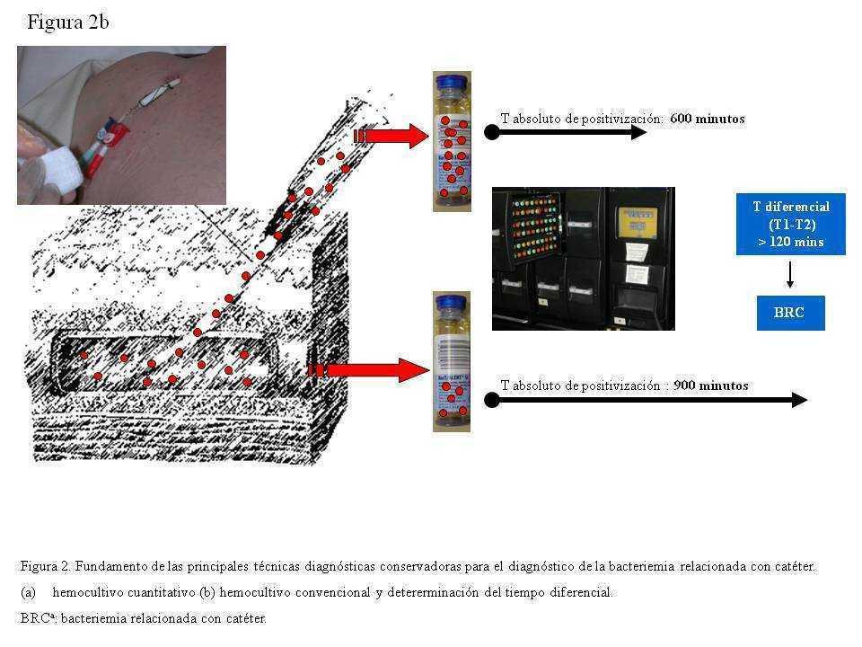 diferencial de infección cutánea por cándida