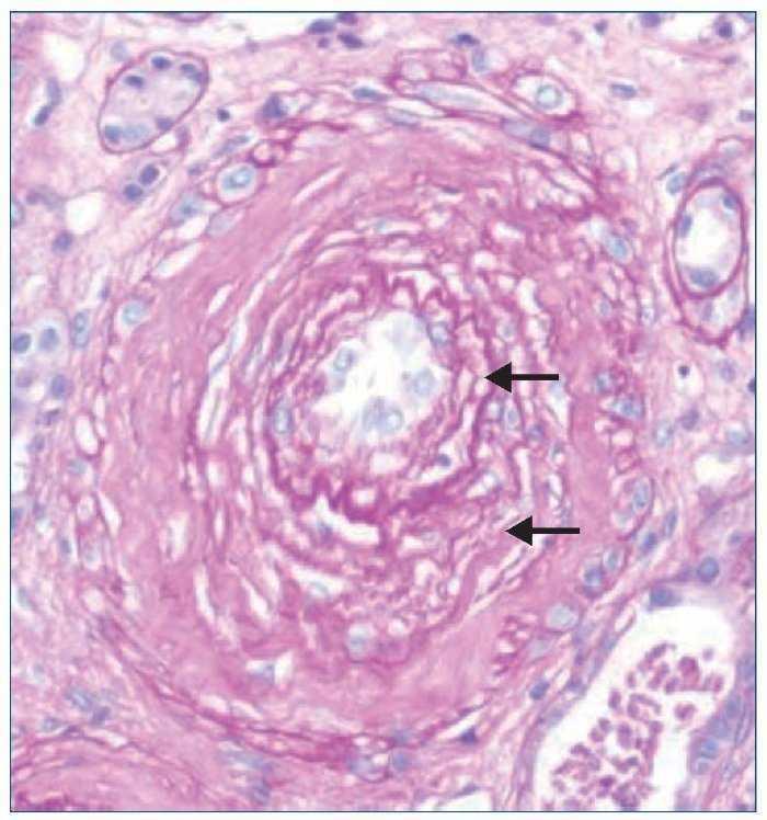 Microangiopatía trombótica diagnóstico de hipertensión maligna