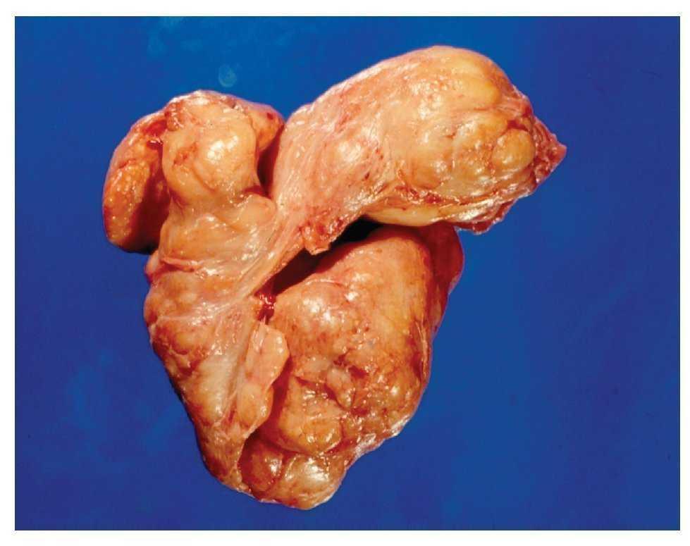 adenoma de prostata grado 2)