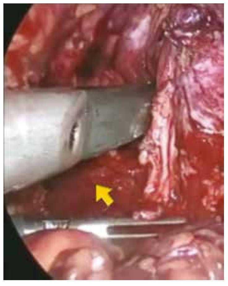 Prostatectomía radical laparoscópica con ultrasonido transrectal y ...