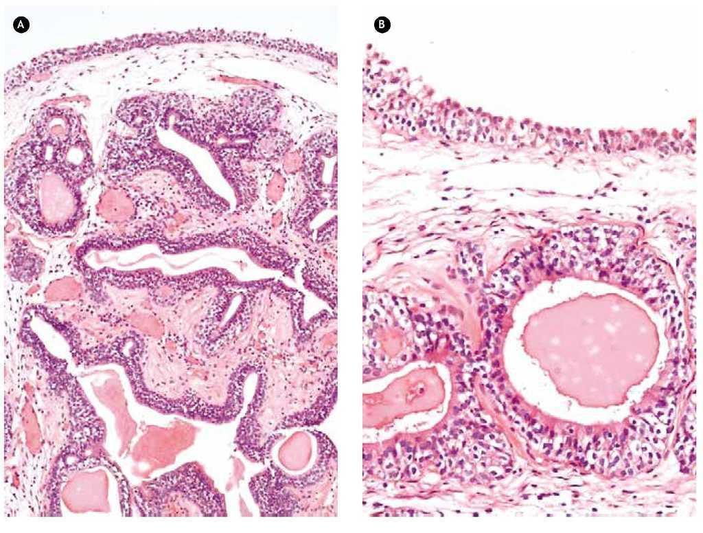 ¿Qué hay en la histología de las glándulas prostáticas?