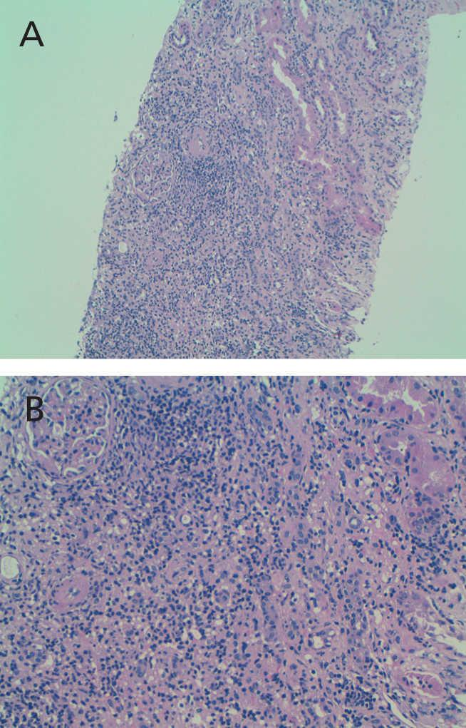 Primary sclerosing cholangitis and interstitial nephropathy