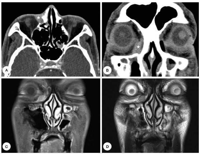 tomografia para cancer de prostata