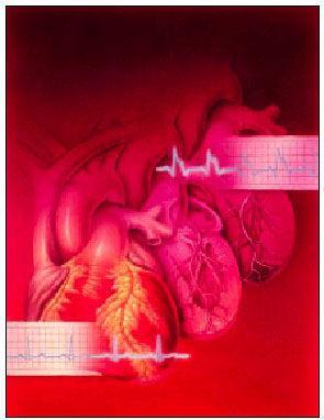 Arritmias cardíacas y su tratamiento | Offarm