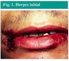 A genitales herpes labial pasar puede