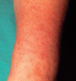piernas de eccema varicoso