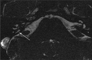 Secuencia ecográfica de gradiente (FIESTA). Saco endolinfático derecho dilatado, de 1,8mm, como hallazgo aislado.
