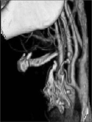 Reconstrucción tridimensional de la tomografía computarizada realizada 4 meses después de la finalización del protocolo de tratamiento.