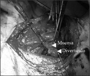 Imagen de la cervicotomía en la que se puede ver el divertículo surgiendo de la unión faringoesofágica.