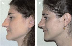 Genioplastia de deslizamiento en cuña con reposicionamiento posterior.