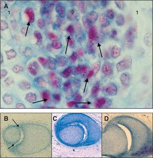 Fenómenos de cavitación en la interzona y cómo se ha completado a las 16 semanas y la articulación incudoestapedial adquiere las características de una articulación de tipo enartrosis. A: destaca en el feto de 12 semanas la presencia en la lámina intermedia de células de aspecto apoptósico (tricrómico de Martins, ×100). B: a las 13 semanas (tricrómico de Martins, ×20). C: a las 14 semanas (tricrómico de Martins, ×20). D: a las 16 semanas (tricrómico de Martins, ×20). 1: lámina condrogénica&#59; 2: lámina intermedia.