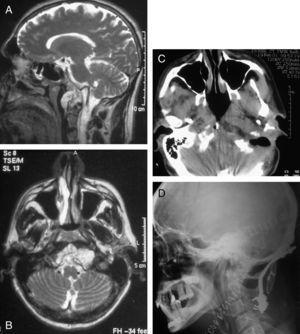 Estudio preoperatorio y control radiológico posquirúrgico del paciente 4. A) Secuencia T2 de RMN en plano sagital. Nótese la protrusión del tumor en la faringe y la relación con la arteria vertebral. B) Secuencia T2 de RMN en plano axial. La extensión lateral izquierda no pudo ser abordada a través del abordaje transmandibular y precisó un segundo tiempo, que consistió en un abordaje transcondíleo lateral extremo. C) TAC de control posquirúrgico, sin evidencia de remanente tumoral. D) Radiografía lateral simple de cuello, evidenciando la fijación occipitocervical realizada.