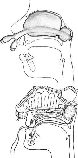Diseño de ambos taponamientos nasales posteriores. A) Taponamiento bicameral hinchado. B) Taponamiento posterior clásico con gasa de introducción por cavidad oral y refuerzo anterior.