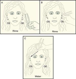 Acumetría en la sordera súbita: A: Rinne aplicando el diapasón junto al pabellón auricular para explorar la vía aérea. B: Rinne aplicando el diapasón sobre mastoides para explorar la vía ósea. C: Weber, percibiendo la conducción ósea hacia el oído sano. OS: oído sano&#59; OE: oído enfermo.