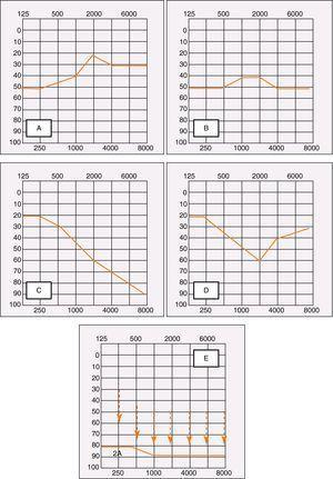 Formas de presentación de la sordera súbita. A: Sordera súbita con HNS en frecuencias graves (mejor pronóstico). B: Sordera súbita con HNS pantonal. C: Sordera súbita con HNS en frecuencias agudas. D: Sordera súbita con HNS en frecuencias medias. E: Sordera súbita con restos auditivos (cofosis).