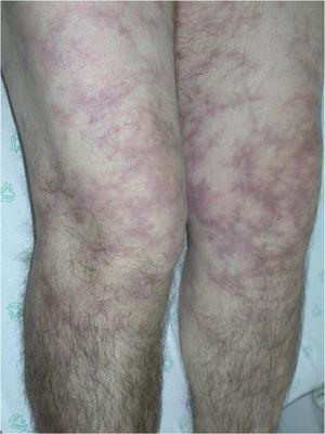 Livedo reticular en paciente con panarteritis nudosa.