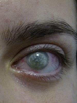 Queratitis intersticial en paciente con síndrome de Cogan.