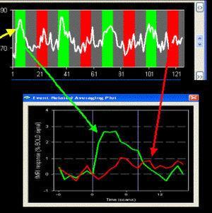 Respuesta hemodinámica en áreas funcionales olfativas. Se aprecia que cuando se libera el estímulo (flecha verde) se produce un aumento del consumo de oxígeno en la zona cerebral estudiada, a diferencia de la fase de reposo (flecha roja).