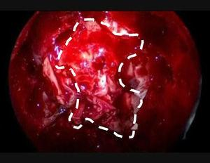 Imagen endoscópica del origen de un adenocarcinoma de etmoides en el techo de las fosas nasales (lámina cribosa).
