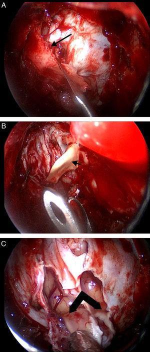 A) Resección de la lámina cribosa (flecha), observando la duramadre de la fosa craneal anterior. B) Extracción de la crista galli (punta de flecha) tras separarla de la lámina cribosa previamente resecada. En ocasiones se extiende profundamente en la cavidad craneal, por lo que se debe tener cuidado al extraerla. C) Se muestran ambos bulbos olfatorios tras incidir la duramadre de la fosa craneal anterior.