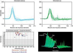 Características del RVOv normal. Se muestra el registro en 2D y el tridimensional escalando los resultados por velocidad de estímulo.