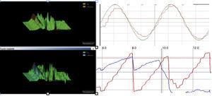 A la izquierda: estudio del reflejo vestibulo-ocular con vHIT (Otometrics®) que revela ganancias bajas y aparición de sacadas abiertas y encubiertas. A la derecha: trastorno del seguimiento lento y optocinético (Ullmer-Synapsis®).