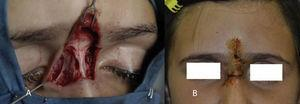 A) Defecto cutáneo resultante tras la exéresis tumoral. B) Resultado postoperatorio a los 7 días.