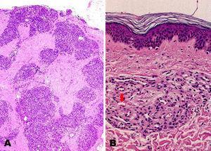 Imagen histopatológica de angioma en penacho. A) Lóbulos de capilares pequeños salpicando la dermis con patrón «en perdigonada» (hematoxilina-eosina, magnificación original ×20). B) Cada lóbulo se compone de agregados de células endoteliales sin atipias ni mitosis, que rodean luces capilares que pueden contener eritrocitos (flecha), (hematoxilina-eosina, magnificación original ×200).