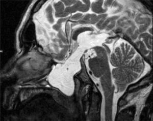 RMN: Defecto óseo con imagen de protrusión intracraneal que sugiere gran contenido de agua, compatible con meningocele esfenoidal.