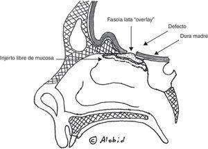 Reconstrucción de la base de cráneo mediante fascia lata en posición overlay recubierta por injerto libre mucoperióstico del cornete medio o inferior.