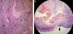 (A) La histopatología muestra una acumulación de células basales basofílicas (B) en la periferia, en un fondo de colagenización generalizada, y las células «fantasma/sombra» anucleadas eosinofílicas (E) en el centro. Nótese el granuloma diseminado (G) (hematoxilina-eosina ×100). (b) La histopatología muestra una rotura epitelial (flecha negra) sin adelgazamiento adyacente (flecha blanca), permitiendo salida de «células fantasma/sombra» eosinofílicas (E) y células basales (B). Nótese la perla de queratina (P) [hematoxilina-eosina; ×50].