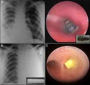 Neumonía derecha (A) y atelectasia izquierda (B) por partes de bolígrafos. (C) Dificultad respiratoria grave por grano de maíz en bronquio principal derecho.